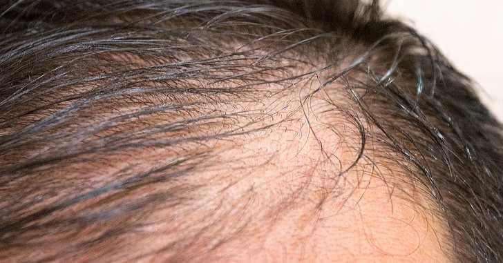 ヘアモアは男性にも効果あり!薄毛や抜け毛が気になる男性に